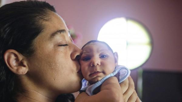 Zika löst Schädelfehlbildung aus