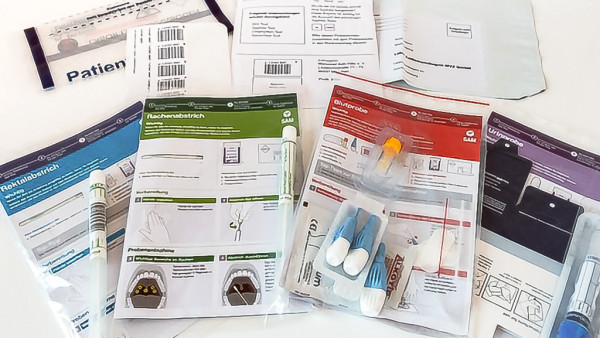 HIV-Test per Post, Ergebnisse per Handy