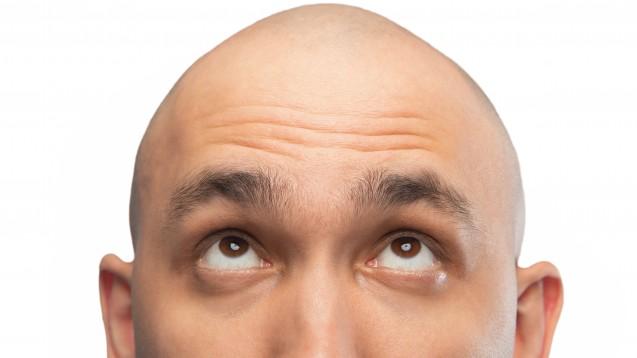 Auch ein kompletter Haarverlust ist nach Auffassung der Hessischen Landessozialrichter:innen keine schwerwiegende Erkrankung. (c / Foto: Chris Tefme / AdobeStock)