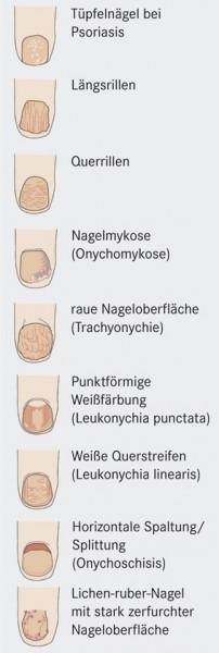 D2409_Medizin_Nagel2.jpg