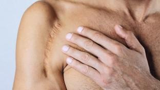 Narben – Haut zweiter Wahl