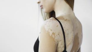 Weiße Flecken auf der Haut