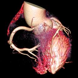 D1010_atherosklerose_HIM20.jpg