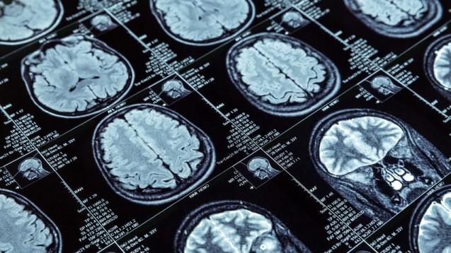 Die Entwicklung von Alzheimermedikamenten gleiche einem Friedhof für klinische Studien, rund 120 gescheiterte Versuche in den letzten 20 Jahren, schrieb die Wissenschaftsredakteurin Emily Underwood. (Foto: Nomad_Soul / Fotolia)