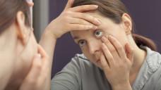 Wie können Apotheker ihre Kunden im Falle einer Lidrandentzündung beraten? Antworten dazu gibt es im Beratungsquickie dieser Woche. (m / Foto: Imago)