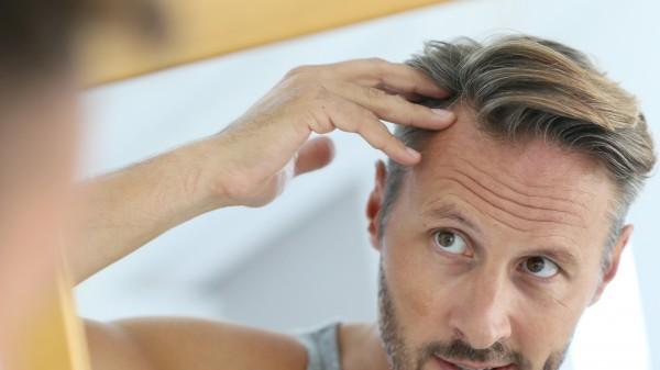 Dauerhaft impotent durch Haarwuchsmittel