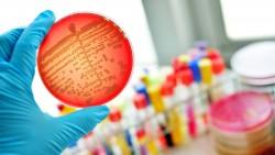 Werden bakterielle Infektionen tatsächlich wieder so gefährlich, wie sie einst waren? (Foto: jarun011 / Fotolia)