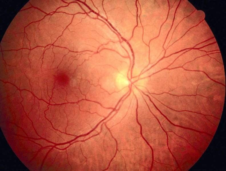 Diabetes – Schäden an der Netzhaut des Auges
