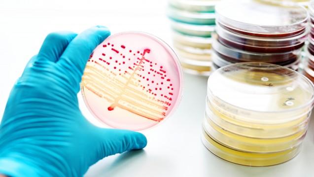 Forscher der VeterinärmedizinischenUniversität Wienund derUniversität Buenos Airesin Argentinien haben einen Faktor gefunden, der Staphylococcus aureus recht unvermutet günstige Überlebensbedingungen verleiht. (Foto jarun011 7 / Fotolia)