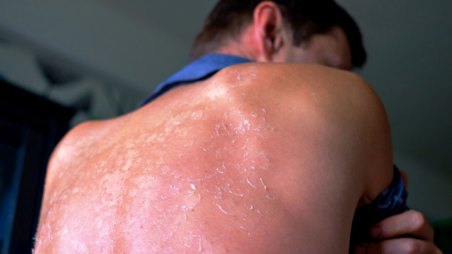 Bei starkem Sonnenbrand lieber nicht: Quark oder Joghurt auf die verbrannte Haut. (c / Foto: koldunova_anna / stock.adobe.com)