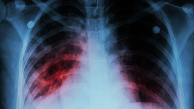 Bis zum Jahr 2035 soll nach dem Willen der Weltgesundheitsorganisation die Zahl der Tuberkulose-Erkrankungen gegenüber 2015 um 90 Prozent sinken. (Foto: stockdevil / stock.adobe.com)