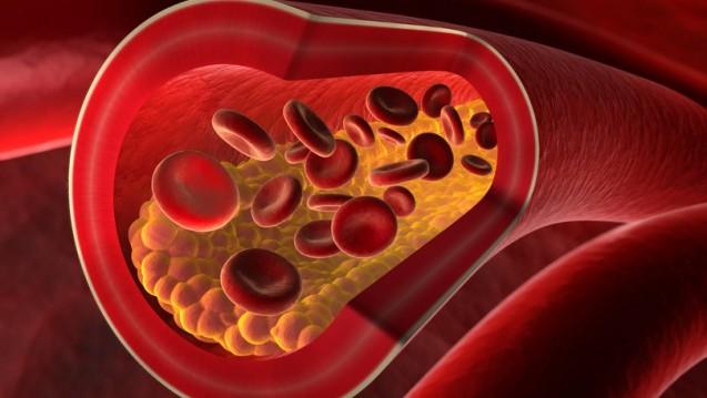 Alirocumab ist eine neue Therapieoption bei Hypercholesterolämie (psdesign1/Fotolia)