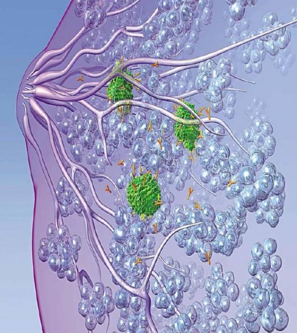 Brustkrebs und das Screening