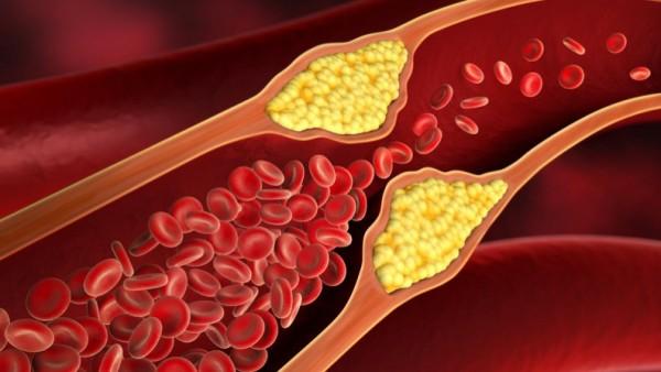 Metformin senkt Cholesterol-Werte