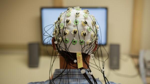 Demenzkranke müssen weiterhin von Forschung profitieren