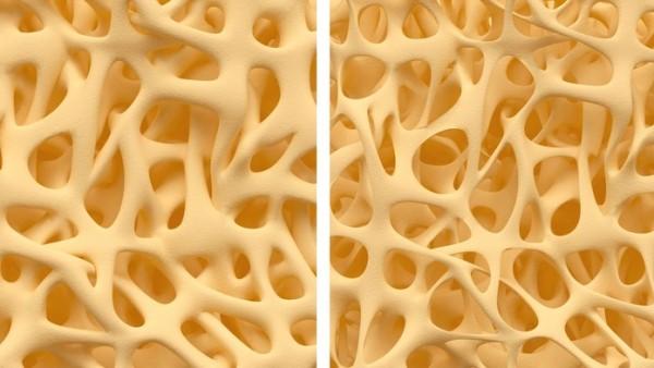 Wirkstoffe können auch zerstörerisch auf Knochen wirken