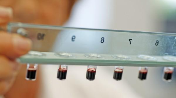 Erfolg für Bayer bei Klage gegen Xarelto