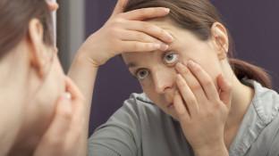 Was tun bei Lidrandentzündung?
