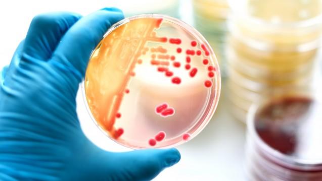 Antibiotika-Resistenzen sind einer neuen Studie zufolge zwar ein europaweites Problem, Präventions- und Kontrollstrategien müssten aber auf jedes Land einzeln zugeschnitten werden. (m / Foto: jarun011 / stock.adobe.com)