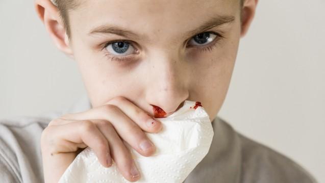 Bei Nasenbluten Kopf nach vorne beugen, Nasenflügel komprimieren und kein Blut schlucken. (Foto:Jan H. Andersen / stock.adobe.com)