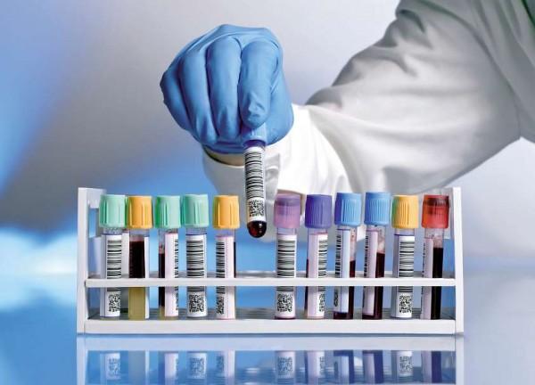 Prostatakrebs-Früherkennung