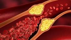 Atherosklerose vorbeugen mit Metformin? (Bild: psdesign1/Fotolia)
