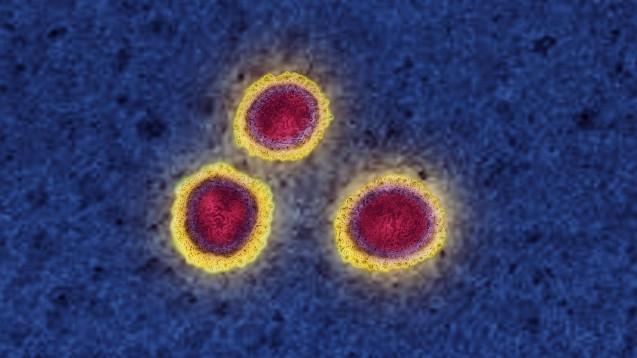 Kann man sich nach einer durchgemachten COVID-19-Erkrankung erneut mit SARS-CoV-2 infizieren? Möglich wäre es, meinen die Wissenschaftler am ECDC. (m / Foto: imago images / UIG)