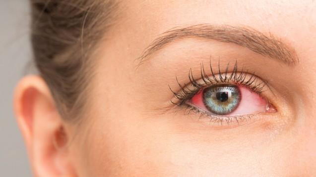 Euphrasia comp. Augensalbe ist nicht lieferbar. Eine alternativeantroposophische Augensalbe gibt es nicht. Die Apotheke kann bei Bindehautentzündung, die der Selbstmedikation zugänglich ist, aber Posiformin empfehlen. Auch Euphrasia Augentropfen können helfen, Bepanthen Augensalbe mit Dexpanthenol kann die Regenration der Bindehaut unterstützen. (m / Foto: Alessandro Grandini / stock.adobe.com)