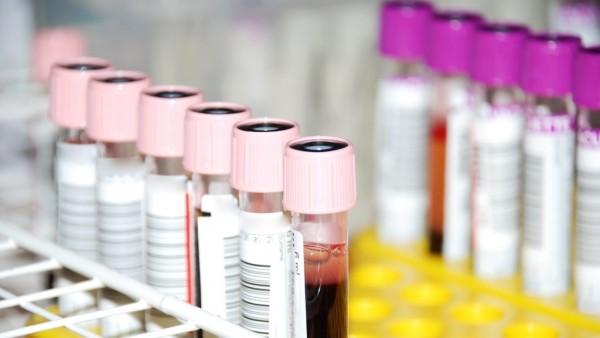 SARS-CoV-2-Antikörpertest jetzt Kassenleistung