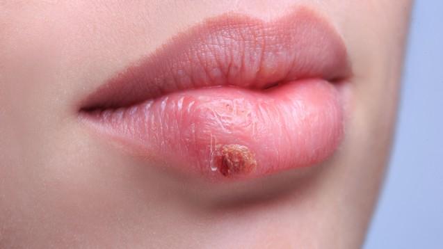 Herpesbläschen: Antivirale Cremes am Besten mit Wattestäbchen auftragen. (Foto: kopitinphoto / Fotolia)