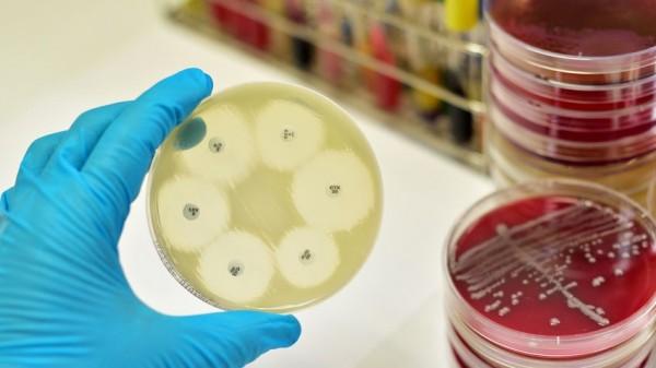 Peptide als Alternative zu Antibiotika?