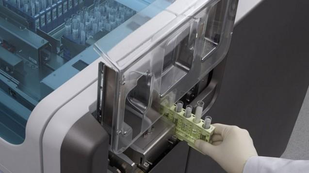 Roche hat von der US-Aufsichtsbehörde FDA die Notfall-Zulassung für einen neuen SARS-CoV-2-Test erhalten. Krankenhäuser und Labore sollen damit große Mengen an Proben zeitgleich analysieren können. (m / Foto: Roche Diagnostics)