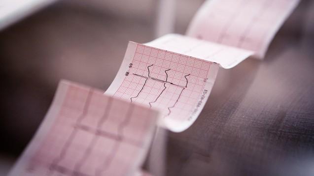 Insgesamt lässt sich bislang nur feststellen, dass SARS-CoV-2 Zellen des Herzens befällt und schädigen kann – und dass Effekte daraus sich auch noch lange nach einer überstandenen Infektion als Long-COVID-Syndrom zeigen können.(c / Foto: shishkin13 / AdobeStock)