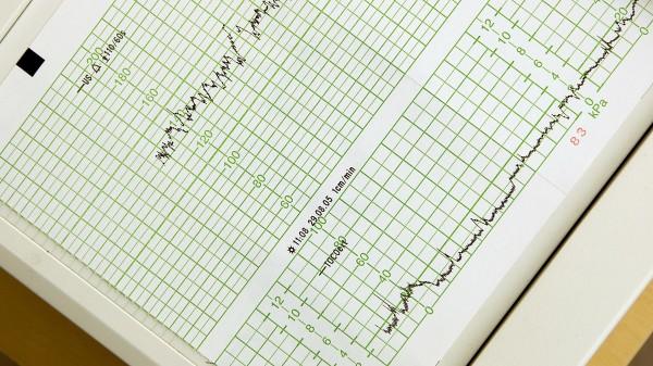 Warnung vor erhöhter Wehenfrequenz nach Misoprostolgabe