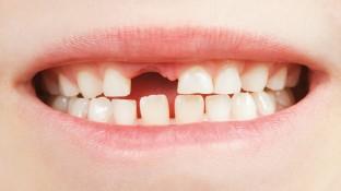 Auf den Zahn gefühlt