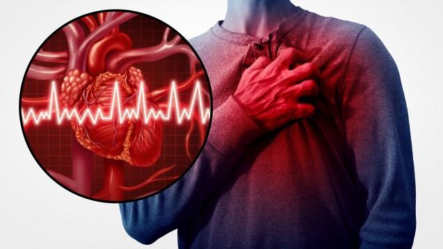 Patienten mit Gicht sollten bei kardiovaskulären Risikofaktoren wie Herzinfarkt oder Schlaganfall nicht mit Febuxostat behandelt werden. Der Grund: Febuxostat erhöht bei diesen Patienten die Sterblichkeit. ( r /Foto: freshidea / stock.adobe.com)
