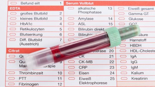 Laborparameter: Bei welchen Arzneimitteln sollten sie regelmäßig erfasst werden?