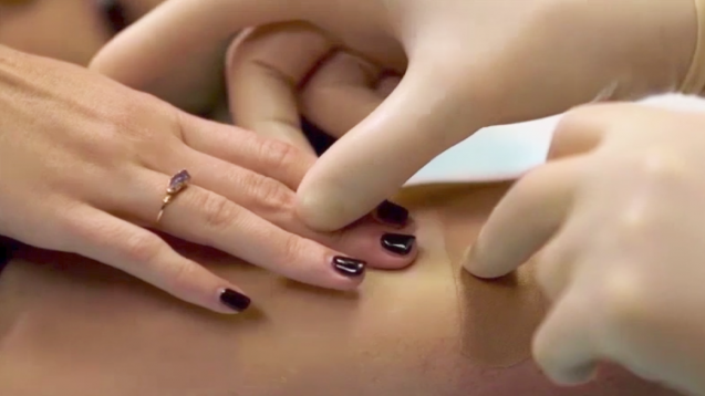 Wie können Patientinnen das Implanon-Stäbchen selbst ertasten? Das sollte ihnen der Arzt direkt zum Zeitpunkt der Einlage zeigen. ( r / Foto: Scrennshot / www.implanonnxtvideos.eu)