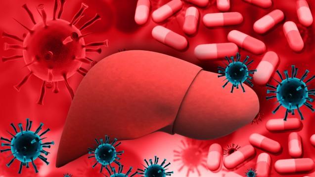 Die Leber kann auf vielfältige Weise angegriffen werden - sogar Diclofenac und Ibuprofen können sie schädigen. (Foto:  bluebay2014/Fotolia)