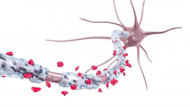 Bei MS kommt es zur irreversiblen Schädigung der Myelinscheide von Nervenzellen im ZNS. (Foto: AG Visuell / Fotolia)