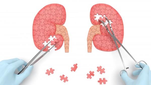 Diabetische Nierenerkrankung – neue mögliche Behandlungsansätze durch Autophagie?