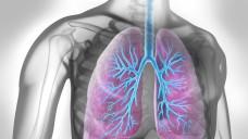 Benralizumab reduziert die durch Eosinophile bedingte Entzündung in den Atemwegen. (Foto:psdesign1 / stock.adobe.com)