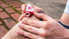 Bei nicht schwerwiegenden Blutungen unter oralen Antikoagulanzien reichen oft ein Pausieren der Antikoagulation und lokale hämostyptische Maßnahmen, sowie Flüssigkeitsersatz. ( r / Foto:arborpulchra / stock.adobe.com)