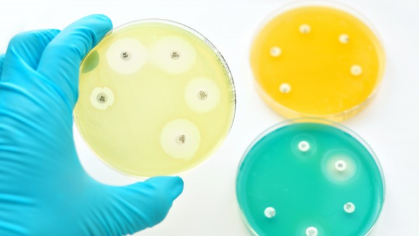 BKK will verpflichtende Tests zur Antibiotika-Reduktion