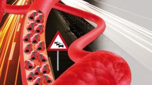 Blutgerinnungsstörungen – Zwischen Stau und überhöhter Geschwindigkeit