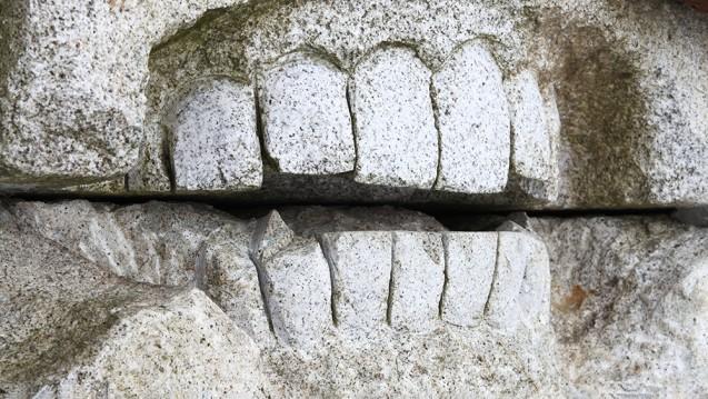 Ist Ibuprofen bei Zahnschmerzen das beste Schmerzmittel? (Foto: Gekon / stock.adobe.com)