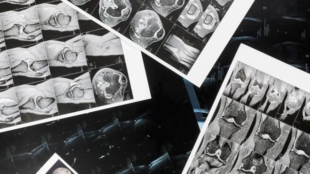 Röntgen- und MRT-Bilder von mehr als 13.000 Patienten aus Deutschland sollen bis vor kurzem frei einsehbar im Internet zugänglich gewesen sein. Weltweit sind sogar Millionen von Patienten betroffen. (c / Foto: imago images / fStop)