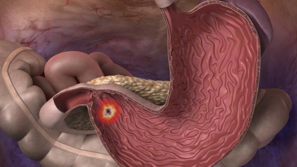Wegen NDMA: Kein Ranitidin bei Zollinger-Ellison-Syndrom