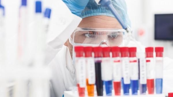 Forscher identifizieren Antikörper, die vor Zika schützen