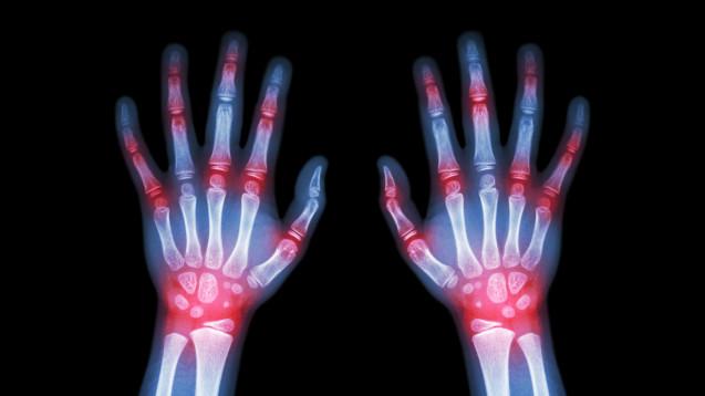 Es gibt keine völlig unbedenkliche Cortisondosis, auch im Low-dose-Bereich erleiden Rheumapatienten häufiger Infektionen. (Foto: stockdevil / stock.adobe.com)
